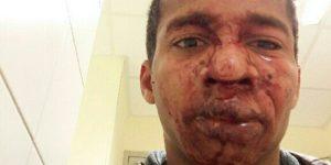victime de violence policiére